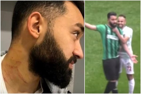 Video: Nevídaný incident v tureckej tretej lige, domáci hráč počas duelu porezal súperov žiletkou