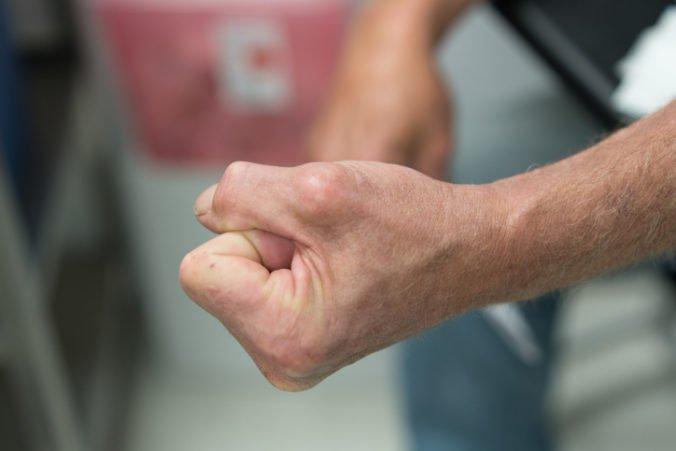 Agresívny pacient zaútočil na sanitárku, nemocnica podala trestné oznámenie