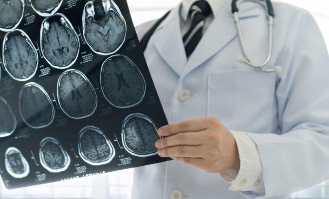 Cievna mozgová príhoda postihuje aj mladých ľudí, pozor najmä na tri rizikové faktory