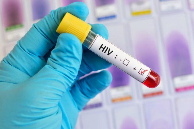Počet chorých na HIV neklesá, na Slovensku zaznamenali historicky najvyšší výskyt