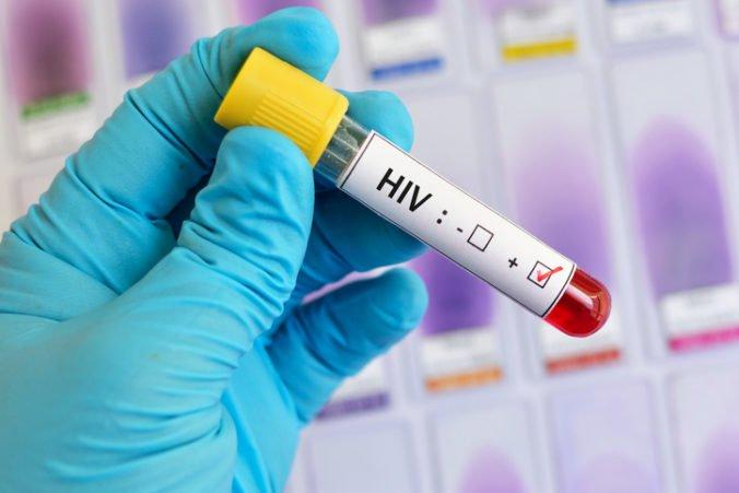 Na Slovensku sa infekcia HIV preniesla aj transfúziou krvi, viac chorých je medzi mužmi