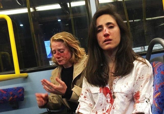 Foto: Nechceli sa na povel bozkávať v autobuse, piati tínedžeri ich surovo dobili