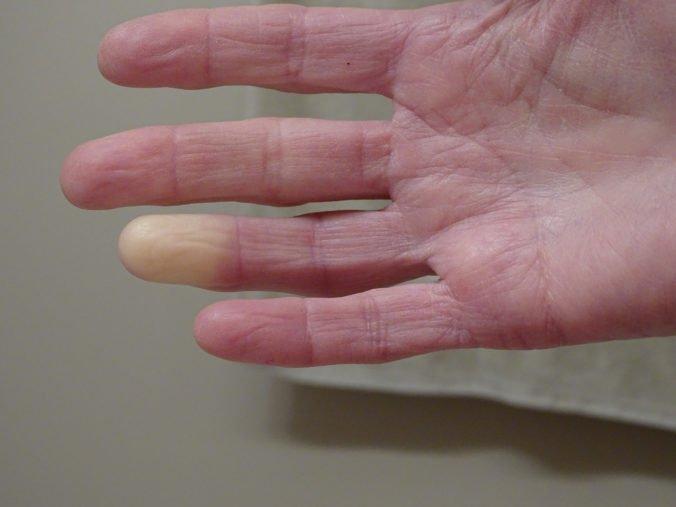 Systémová skleróza (sklerodermia) postihuje kožu, srdce, obličky. Pacientom so sklerodermiou však klesá aj pľúcna kapacita
