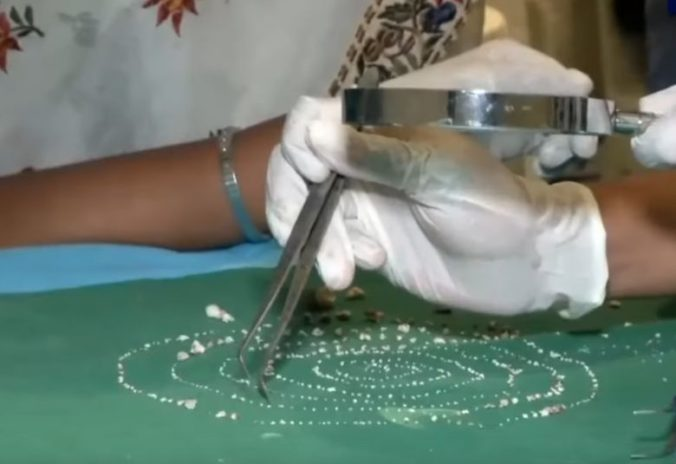 Video: Sedemročný chlapec poriadne prekvapil lekárov, v ústach mal o 526 zubov naviac