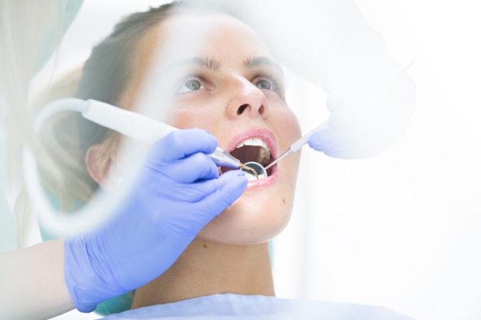 Čínski vedci objavili gél na obnovu zubnej skloviny, testovali ho na vytrhnutých zuboch