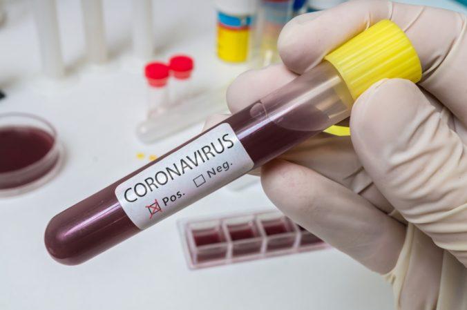 Muž predával liek na zníženie rizika infekcie koronavírusom, skončil za mrežami