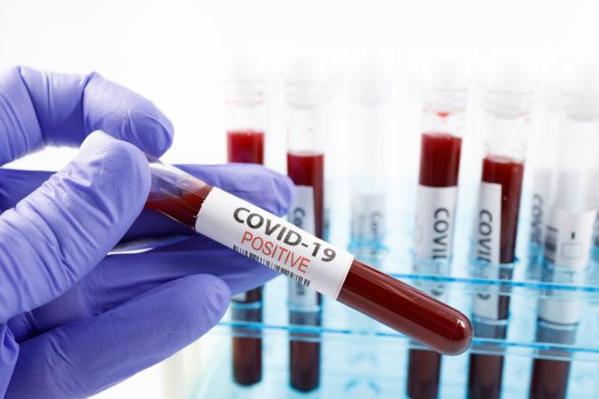 V Poľsku za deň pribudlo rekordné množstvo pozitívne testovaných na koronavírus