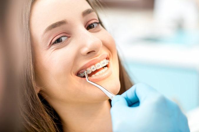 Union bude prispievať na zubné strojčeky