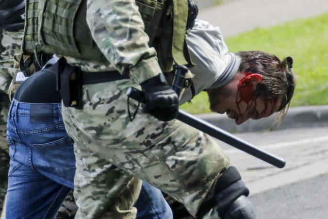 Polícia zatkla na protestoch voči Lukašenkovi vyše 400 ľudí, tvrdo zasiahla aj proti ženám (foto)