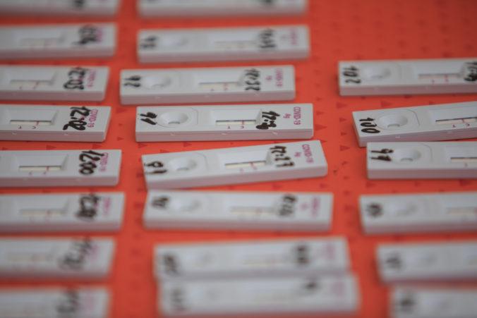 Ministerstvo hospodárstva začína prípravnékonzultácie na nákup antigénových testov