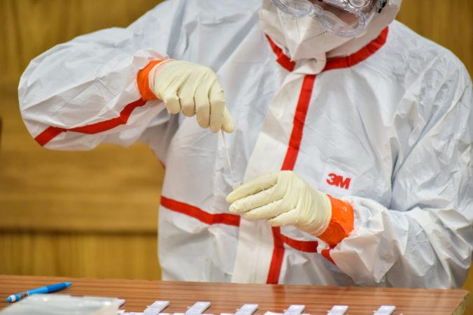 Štát odporúča testovanie firmám s viac ako 250 zamestnancami, súčasťou manuálu sú aj tri prílohy